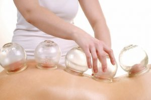 Cupping_Therapy2