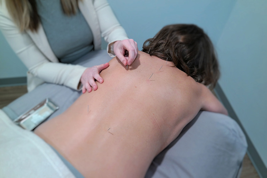 Acupuncture_Fredericton