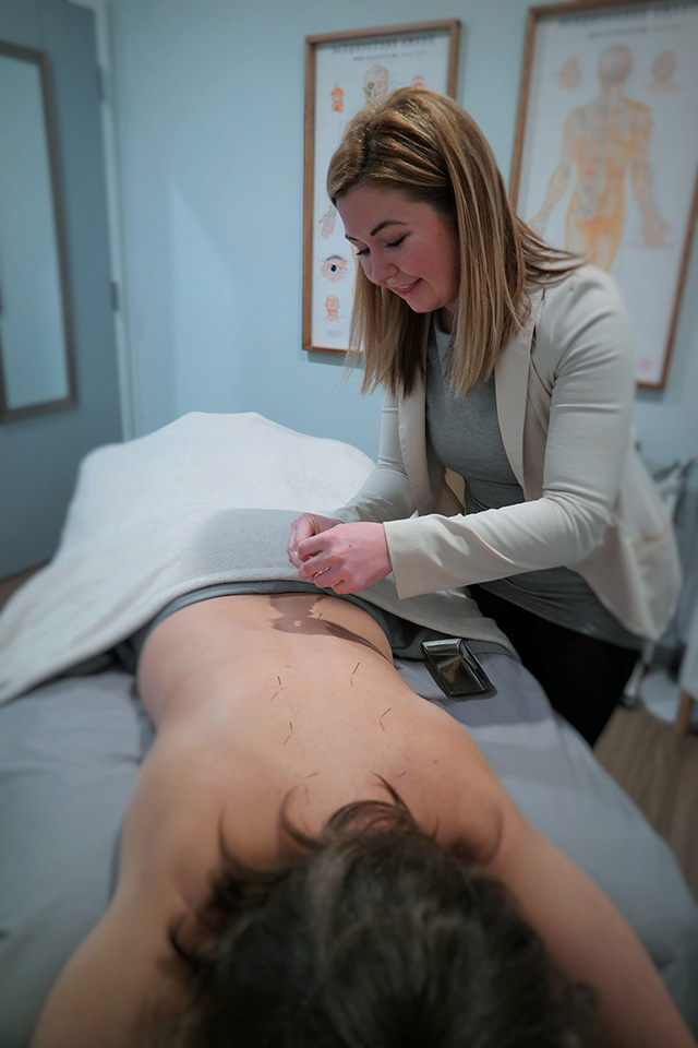 Acupuncture_body-renewal-health